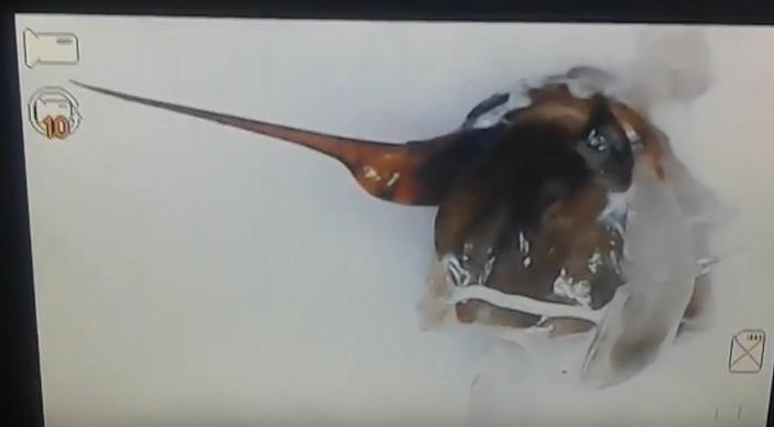 Жало пчелы видео и фото под микроскопом