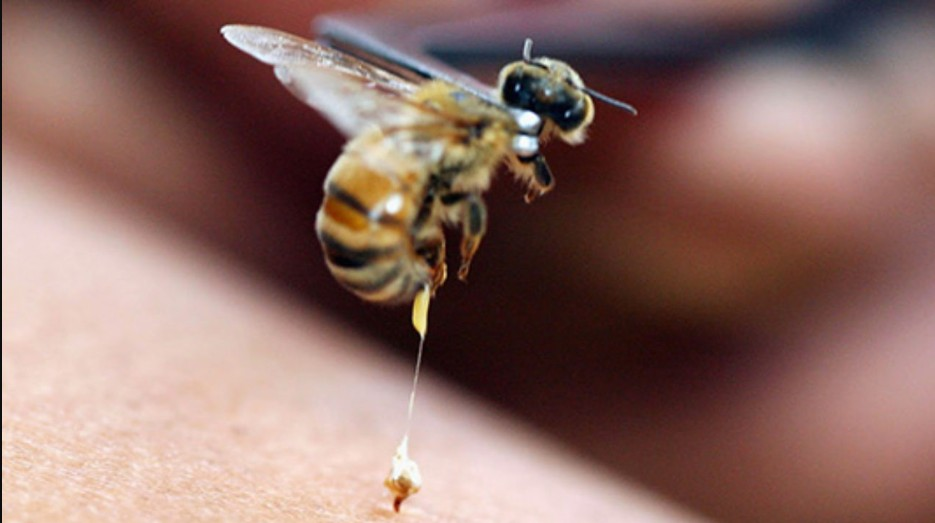 лікування бджолами Тромбоз підключичної вени, Апітерапія